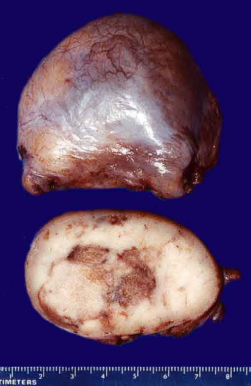 Testicle with Seminoma (gross)